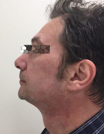 Effetti ultherapy prima e dopo - occhi